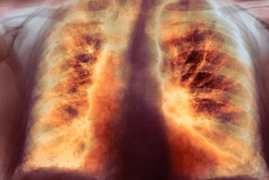 Idiopathic pulmonary fibrosis, also known as fibrosing alveolitis, is a condition where chronic progressive inflammation causes the alveoli to gradually thicken and scar causing dyspnoea | SCIENCE PHOTO LIBRARY