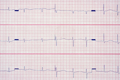 Ondansetron should be avoided in patients with congenital long QT syndrome | SCIENCE PHOTO LIBRARY