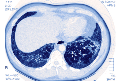 Idiopathic pulmonary fibrosis occurs most often in patients aged between 50 and 70 years | SCIENCE PHOTO LIBRARY