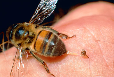 Hyposensitisation therapy using low-dose allergens can treat IgE-mediated allergy to bee and wasp venom | SCIENCE PHOTO LIBRARY