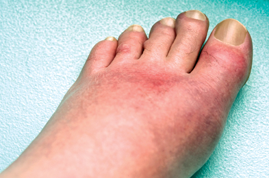 Urate-lowering therapy is vital to control the symptoms of gout. (Photograph: SPL)