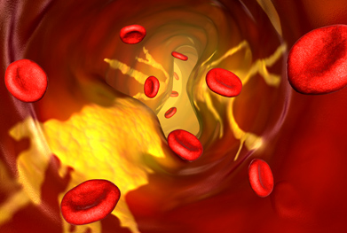 Untreated hypercholesterolaemia can lead to atherosclerosis and narrowing of the arteries. | SCIENCE PHOTO LIBRARY