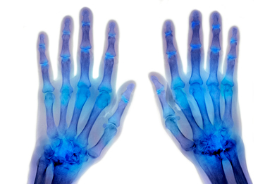 In addition to rheumatoid arthritis, ocrelizumab is being studied in other autoimmune diseases including multiple sclerosis and lupus nephritis. (Photograph: DU CANE MEDICAL IMAGING LTD / SCIENCE PHOTO LIBRARY).