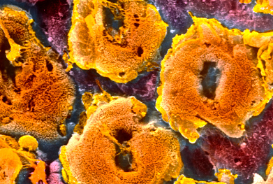 In addition to its gastrointestinal indications (including ulcerative colitis, pictured), Humira is also licensed for rheumatoid, psoriatic and juvenile idiopathic arthritis and severe chronic plaque psoriasis | SCIENCE PHOTO LIBRARY