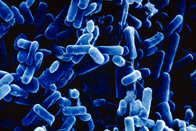 The primary cause of death in cystic fibrosis is respiratory failure precipitated by chronic pulmonary infection caused by Pseudomonas aeruginosa (pictured) | SCIENCE PHOTO LIBRARY
