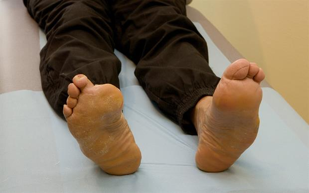 SGLT2 inhibitors may increase the risk of lower-limb amputation. | B. BOISSONNET/ SCIENCE PHOTO LIBRARY