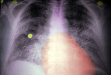 Cozaar now indicated for heart failure in the under 60s age group | SPL
