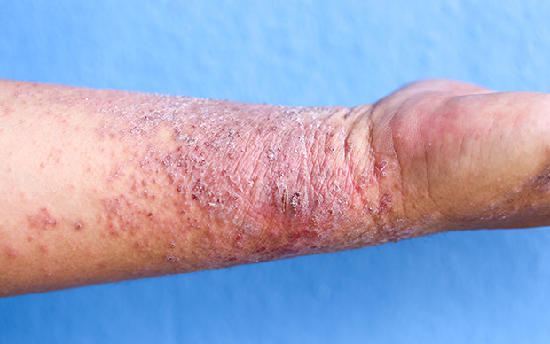 Atopic dermatitis can have a serious impact on patients' quality of life, both physically and mentally. | iStock/Sinhyu
