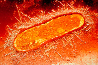 Urinary tract infections, including those caused by E. coli (pictured), can be treated with nitrofurantoin provided the patient has no significant degree of renal impairment | SCIENCE PHOTO LIBRARY