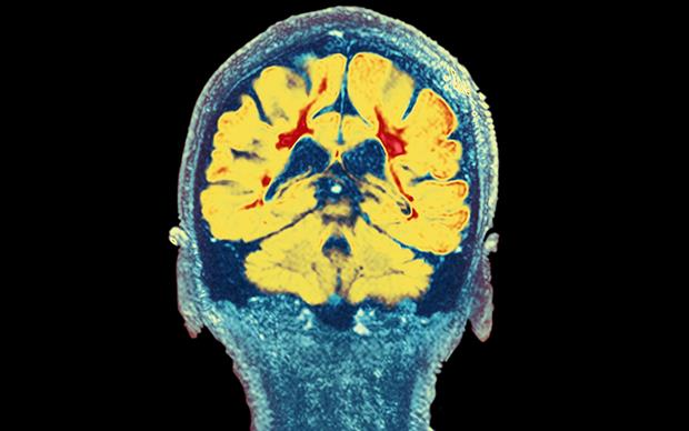 Glatiramer acetate is indicated for the treatment of relapsing forms of multiple sclerosis (MS). | DR P. MARAZZI/SCIENCE PHOTO LIBRARY
