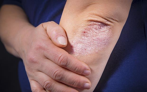 Fumaric acid esters were first investigated for the treatment of psoriasis in 1959. | iSTOCK