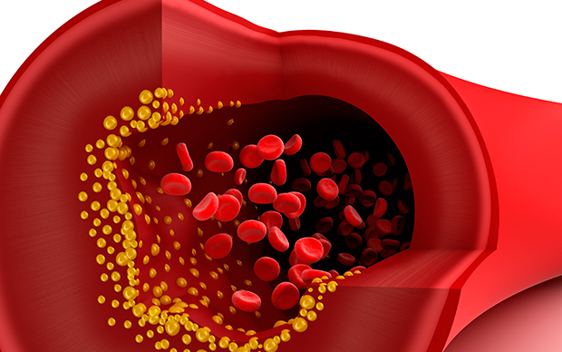 High cholesterol increases the risk of atherosclerosis, heart attack and stroke. | iStock