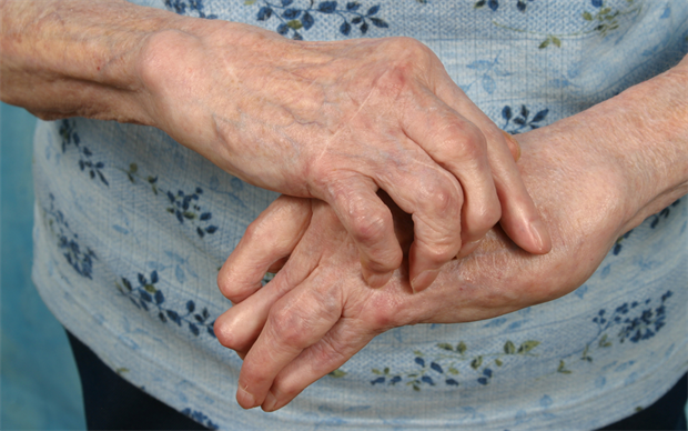 Tofacitinib reduces inflammation in patients with rheumatoid arthritis. | iStock