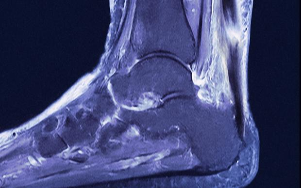 Tendon damage (especially to the Achilles tendon but also other tendons) can occur within 48 hours of starting quinolone treatment. | GUSTOIMAGES/SCIENCE PHOTO LIBRARY