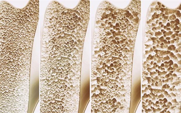 Correcting vitamin D is likely to be beneficial in osteoporosis. | iStock.com/CreVis2