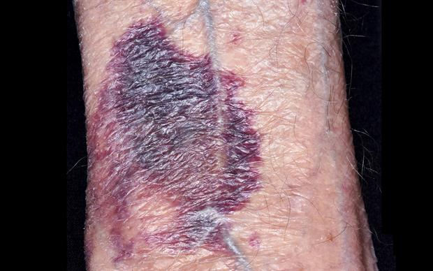 Adverse events reported in patients on warfarin using miconazole oral gel include increased INR, contusion, and haematuria. | DR P. MARAZZI/SCIENCE PHOTO LIBRARY