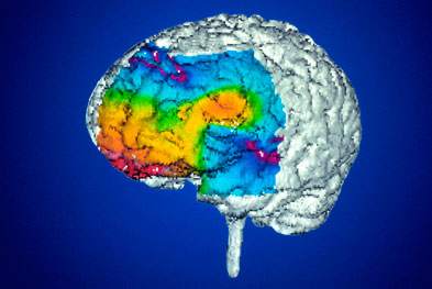 The CHM has issued new advice on switching between different manufacturer's products for a particular anticonvulsant in the treatment of epilepsy | SCIENCE PHOTO LIBRARY