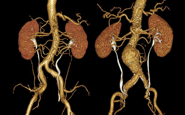 Quinolone antibiotics have been linked to increased risks of aortic aneurysm and dissection | ZEPHYR/SCIENCE PHOTO LIBRARY