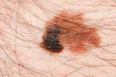 Melanoma: management guidelines should consolidate as more data become available (Photograph: Dr P Marazzi/SPL)