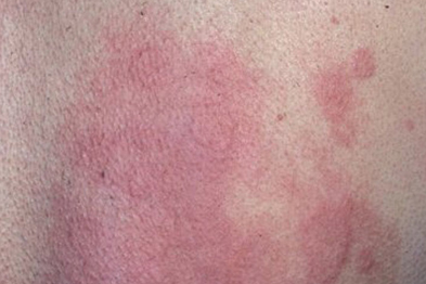 Chronic urticaria can respond to methotrexate