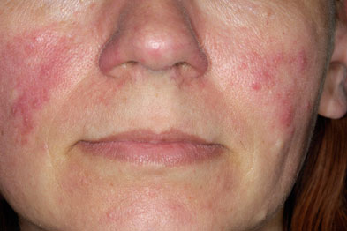 What is facial erytherma