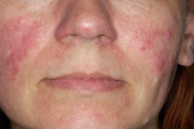 Rosacea: efficacy of brimonidine gel under assessment (Photograph: Dr P Marazzi/Science Photo Library)