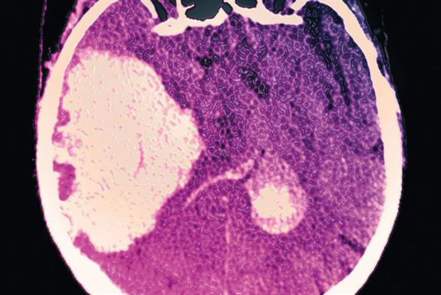 Intracerebral haemorrhage: NOACs are lower risk than warfarin