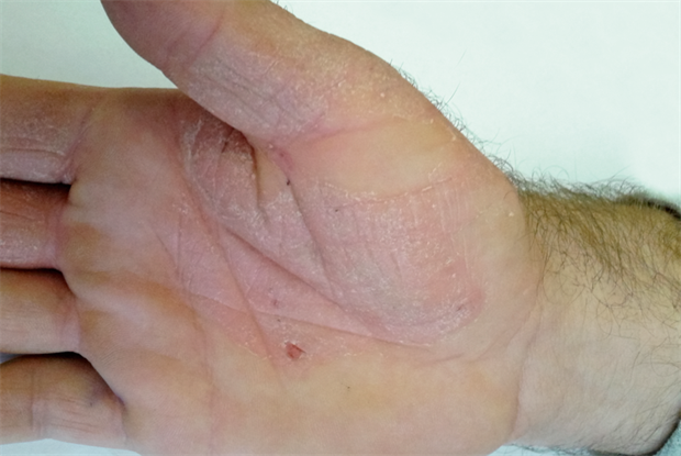 Differential diagnoses: Hand rashes | GPonline