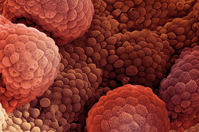 Prostate cancer: diagnosis via PSA velocity 'no better than PSA/age'