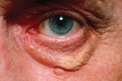 Xanthelasma predicts the risk of MI, IHD, severe atherosclerosis and death in the general population (Photograph: SPL)