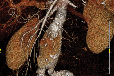 Three-dimensional CT reconstruction: large AAA extending to iliac arteries