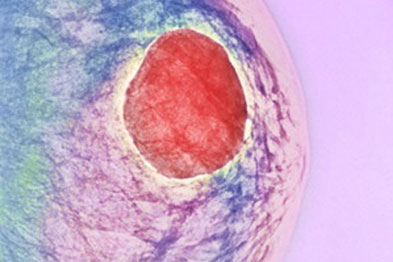 Breast cysts may be benign