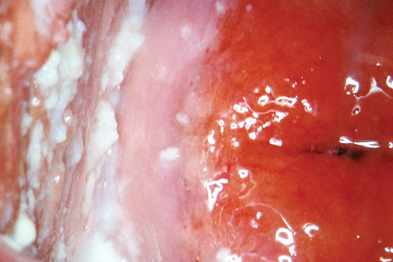 Vaginal candidiasis may present with lumpy discharge and swelling (Photograph: ISM/SPL)