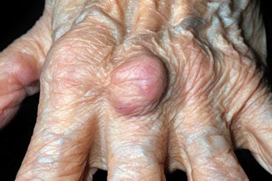 Rheumatoid arthritis: elevated rheumatoid factor suggests the need for specialist referral (Photograph: Dr P Marazzi/SPL)