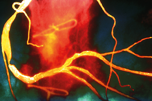 Coloured angiogram showing stenosis of the coronary arteries, usually a result of atherosclerosis (Photo: SPL)
