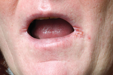 An elderly patient was having trouble with sores at the corners of his mouth (Photograph: SPL)
