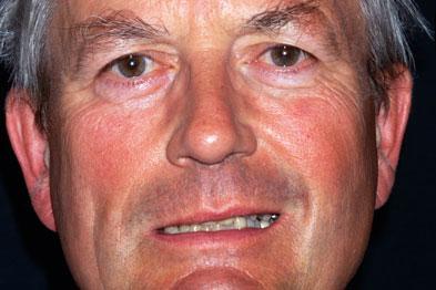 Symptoms of a stroke can include facial paralysis (Photograph: SPL)