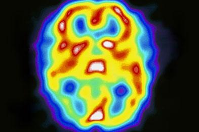 Headache Fact File - Part 3 - Migraine   GPonline