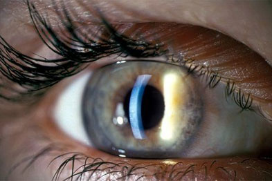 Slit lamp eye examination (Photo: SPL)