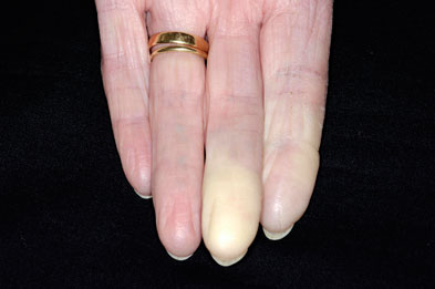 Pallor of the fingers is an indicator of Raynaud's phenomenon