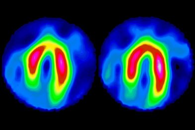 Scans showing heart at rest (right) and during ischaemic exercise (left)
