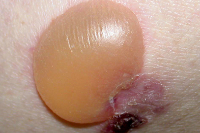 Over time the tense blisters can become purulent and haemorrhagic