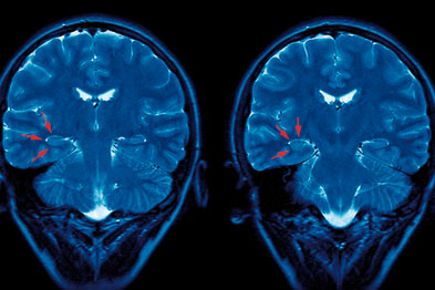 Proposed indicators for epilepsy will not be taken up in 2010/11