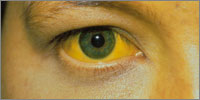Yellowing of the sclera (Photo: SPL))