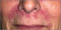 A rebound flare is seen after steroid use on the face