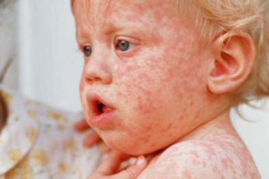 Measles: national MMR campaign launched (photo: SPL)