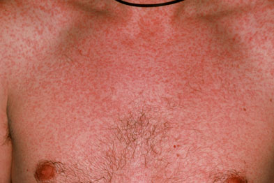 A severe measles rash on the chest of a man