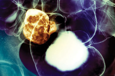 Bowel cancer: the screening programme in England should help to reduce mortality rates (Photograph: Zephyr/SPL)