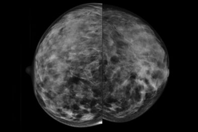 Craniocaudal mammography demonstrating multifocal carcinoma in left breast and microcalcification in right breast (Photograph: Janet MacDonald)