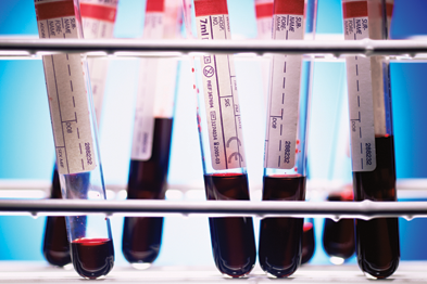 Blood samples: data show cost of tests varies significantly